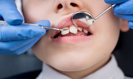 Close-up of dentists hand examining teeth of boy patient in dental clinic using dental tools - probe and mirror. Dentistry Stock Photo