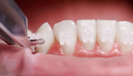 Close up of orthodontist attaching orthodontic brackets on patient teeth. Person with braces on white teeth having dental procedure in clinic. Concept of dentistry and orthodontic treatment.