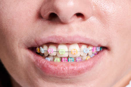 Horizontal close-up snapshot of beautiful womans smile, demonstrating white healthy teeth with ceramic braces, united with a wire and colorful rubber bands. Front view with a tip of nose