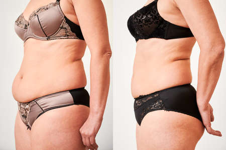 Side view of womans body before and after weight loss, plastic surgery concept