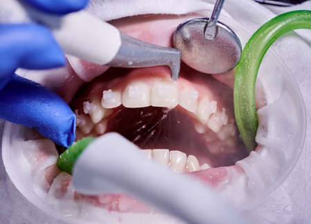 Macro photography. Cleaning process in patients mouth with cheek retractor and brackets on teeth. Cleansing teeth with water jet and saliva ejector. Concept of professional dental hygiene Stok Fotoğraf - 161868565