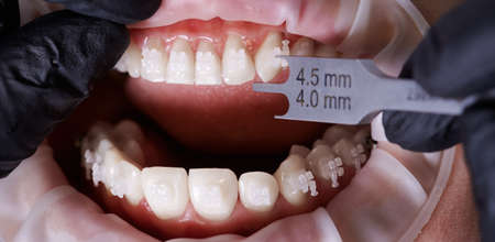 Horizontal close-up snapshot of dentists hands measuring distance from a bracket to tip of tooth. Dental height gauge. Top view. Concept of stomatology and orthodontic treatment.