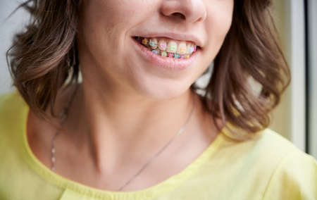 Beautiful woman smiling, looking at camera, white teeth with braces. Dental care. Pretty woman smile with orthodontic accessories. Cosmetic dentistry, oral treatment. Close-up Stok Fotoğraf