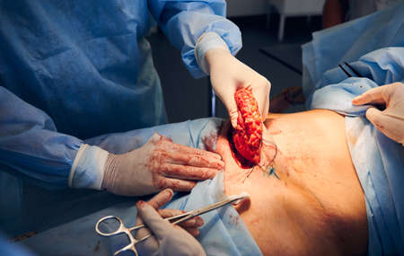Close up of doctors in sterile gloves performing tummy tuck surgery in operating room. Plastic surgeon removing excess fat from patient abdomen. Concept of medicine, abdominoplasty and plastic surgery
