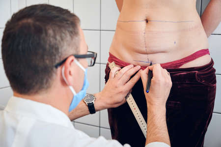 Close up of male doctor drawing marks on woman body before plastic surgery. Plastic surgeon holding ruler and drawing line on abdomen of female patient. Concept of abdominoplasty, cosmetic surgery.