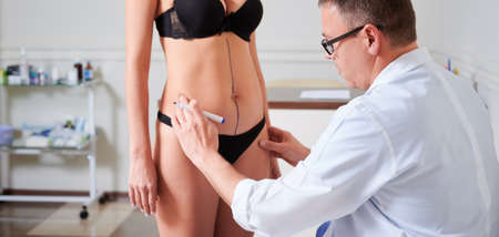 Young woman in black underwear standing in front of plastic surgeon while man drawing line on her bare skin before plastic surgery. Concept of plastics, beauty and preparation for aesthetic surgery.