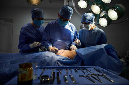Group of doctors in sterile gloves and protective face masks doing cosmetic surgery in operating room at hospital. Patient with marks on belly lying on operating table. Concept of plastic surgery. Stok Fotoğraf