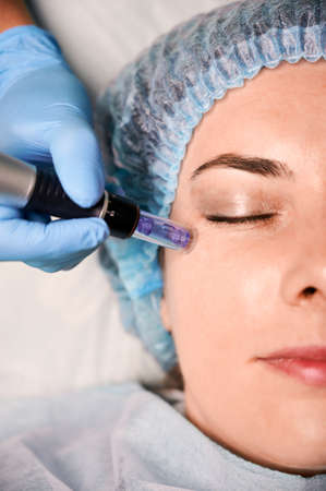 Close up of cosmetologist hand in sterile glove using dermapen during skincare procedure. Young woman receiving facial treatment at wellness center. Concept of beauty, skincare, anti-aging procedure.