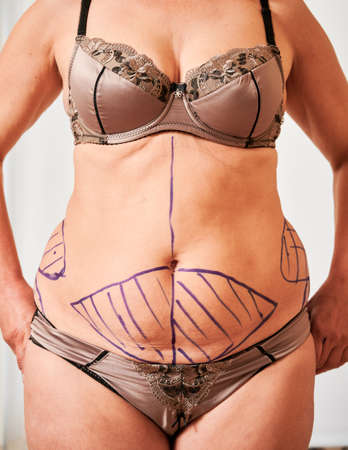 Close up of patient belly with blue marks for aesthetic surgery. Fat woman in underwear demonstrating results of preoperative marking procedure. Concept of overweight, preparation for plastic surgery. Stock Photo