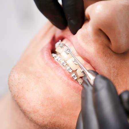 Dentist placing rubber bands on male patient braces.