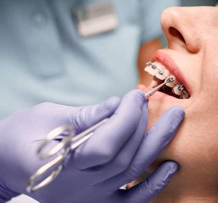 Orthodontist hands placing braces on woman teeth.
