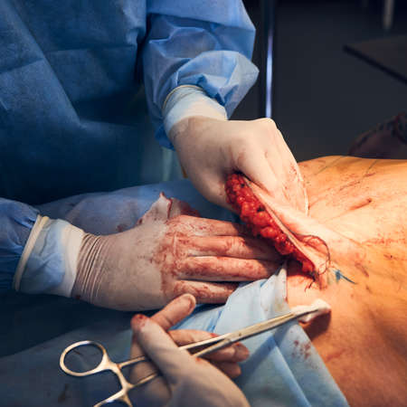 Medical workers performing abdominoplasty surgery in clinic. Standard-Bild