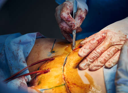 Plastic surgeon cutting patient belly during abdominoplasty surgery.