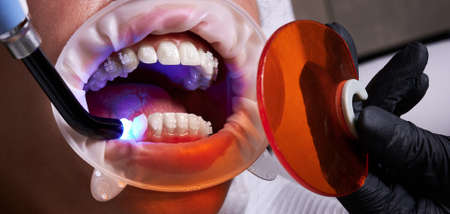 Process of attaching ceramic braces to the teeth with a help of uv glue