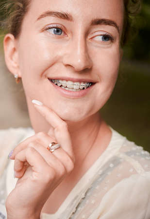 Vertical portrait of natural beauty woman, smiling, wearing dental ceramic and metal braces on teeth. Looking away. Close up. Concept of medicine and dentistry Stok Fotoğraf