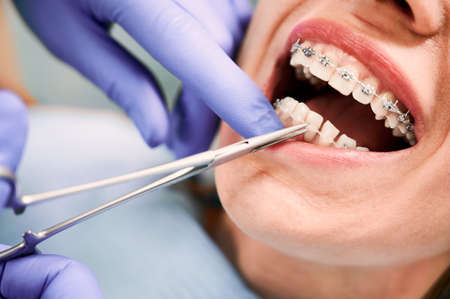 Close up of orthodontist hands in blue gloves using dental forceps while putting ligature wire on female patient teeth. Woman with metal braces on teeth receiving orthodontic treatment in clinic. Stok Fotoğraf
