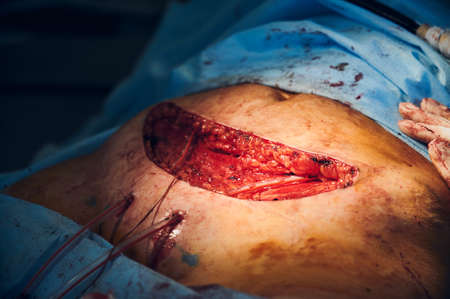 Close up of open wound during tummy tuck surgery in clinic. Medical worker removing excess fat from patient belly while doing abdominal plastic surgery. Concept of abdominoplasty and cosmetic surgery. Stock fotó