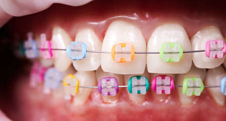 Macro snapshot of teeth and ceramic braces with colorful rubber bands on them. Concept of dentistry and orthodontic treatment.