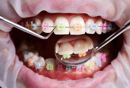 Close up of dentist checking patient brackets on teeth with dental mirror and explorer. Person with braces and rubber bands on teeth having dental procedure in clinic. Concept of dentistry, healthcare