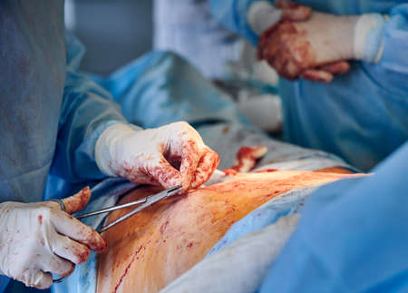 Close up of medical worker hands cutting thread with scissors while placing sutures after tummy tuck surgery. Surgeon performing abdominal plastic surgery in operating room. Concept of abdominoplasty.