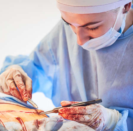 Close up of young female surgeon placing sutures following tummy tuck surgery. Woman doctor performing abdominal plastic surgery in operating room. Concept of abdominoplasty and cosmetic surgery.