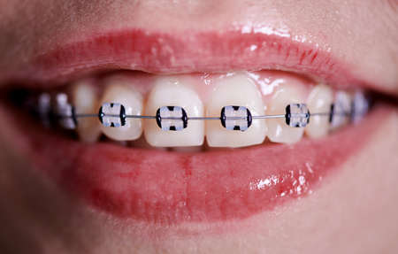 Horizontal close-up snapshot of beautiful womans smile, demonstrating white healthy teeth with ceramic braces, united with rusty wire and black rubber bands. Front view Stok Fotoğraf