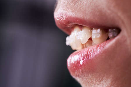 Close up of smiling woman with opened mouth demonstrating white teeth with orthodontic brackets. Female patient at dental braces treatment. Concept of orthodontic treatment and stomatology. Stok Fotoğraf