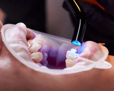 Close-up view of dentist hand in black glove using dental curing UV lamp on teeth of patient. Cheek retractor on lips. Side view. Concept of dental procedures