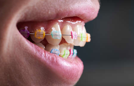 Horizontal close-up snapshot of beautiful womans smile, demonstrating white healthy teeth with ceramic braces, united with a wire and colorful rubber bands. Side view. Concept of orthodontics Stok Fotoğraf