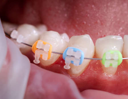 Close-up snapshot of a few lower teeth in mouth during procedure of installation ceramic braces, steel wire and colorful rubber bands. Process of replacing old braces into new ones