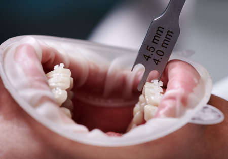 Close up of dentist using aluminum bracket gauge while attaching braces to patient teeth. Person with cheek retractor in mouth and orthodontic brackets on teeth receiving treatment in clinic.