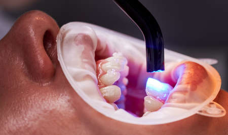 Close up of patient with cheek retractor in mouth at dental clinic. Orthodontist using dental curing UV lamp on teeth of patient. Concept of dentistry and orthodontic treatment.