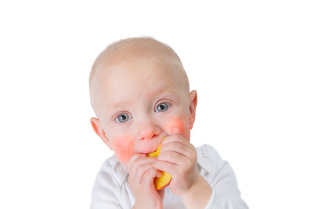 Food allergy concept - baby with dermatitis on cheeks