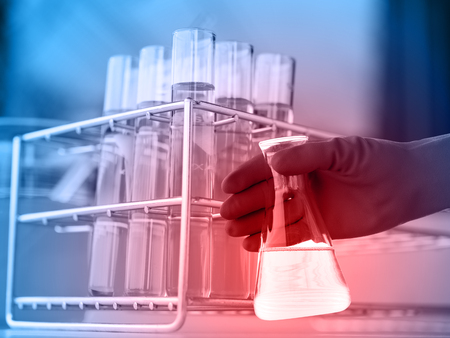 healthcare worker: Flask in scientist hand with test tube in rack