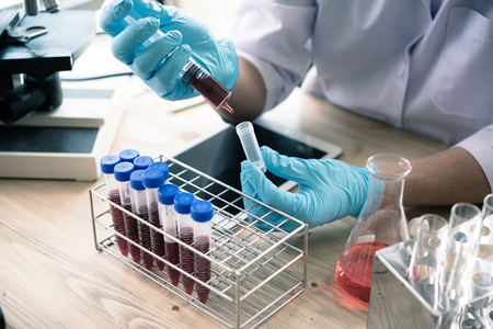 technician of health with blood tubes in the clinical lab for analytical , Medical, pharmaceutical and scientific research and development concept. Stock Photo