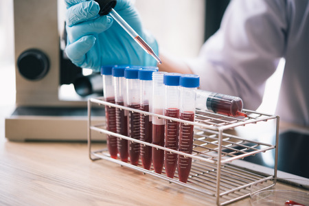 technician of health with blood tubes in the clinical lab for analytical , Medical, pharmaceutical and scientific research and development concept. 版權商用圖片