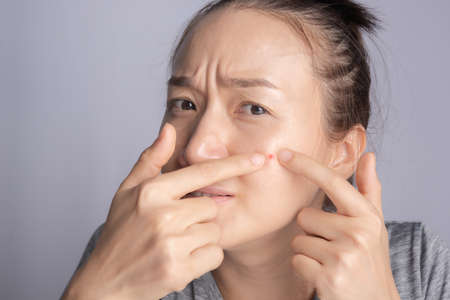 young beauty woman of asian squeezing her pimple, removing pimple from her face. Woman skin care concept