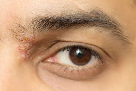 herpes simplex: herpes zoster ophthalmicus eye herpetic cold sore Stock Photo