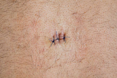 cyst: sebaceous epidermoid, cyst  operated and stitched on the back of the male Stock Photo