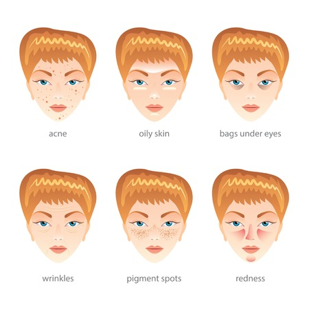 Problem skin, different face diseases set Vector