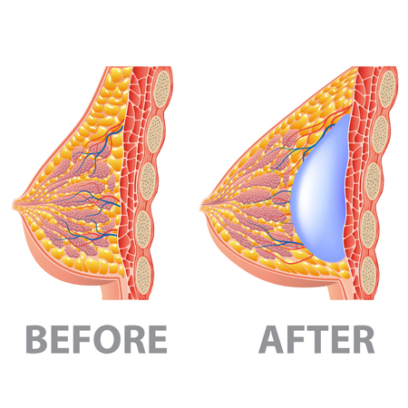 Breast implant before and after isolated on white photo-realistic vector illustration