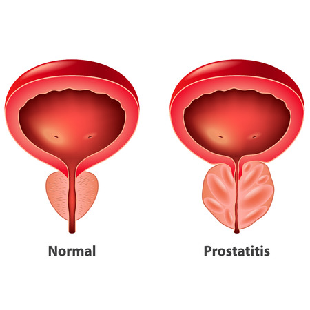 Prostatitis normal e inflamada próstata vector aislado ilustración fotorrealista Ilustración de vector