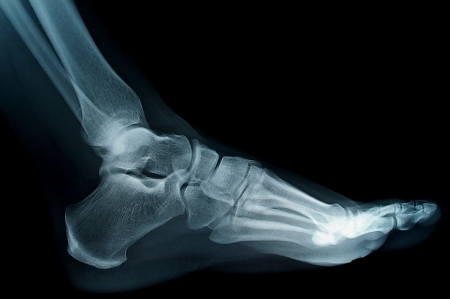 human foot ankel and leg xray picture Stock Photo - 6768849