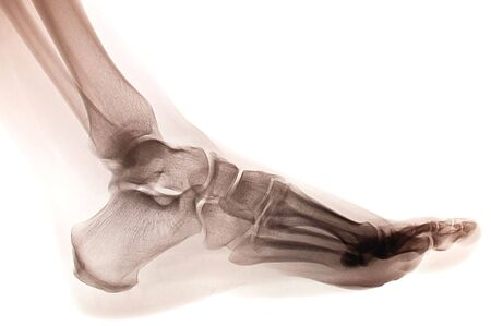 Foto de pie humano ankel y pierna xray