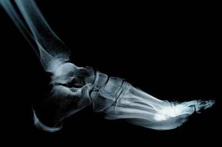 human foot ankel and leg xray picture  photo