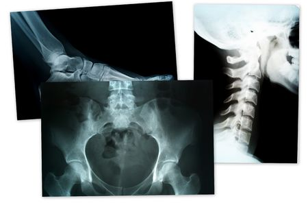 xray of foot head and neck compilation Stock Photo