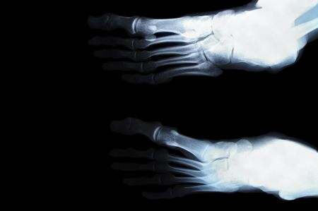 human foot toes close up xray picture  photo
