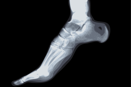 human foot ankel and leg xray picture vector Vector