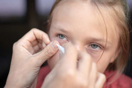 Mom removes a foreign body from her daughter's eye with a gauze napkin. Stockfoto