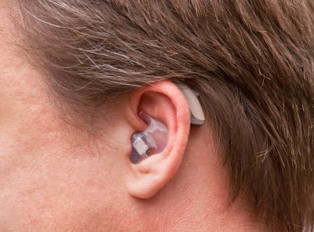 listening device: Close-up of a man ear with a high-tech digital behind-the-ear-hearing device